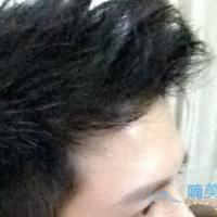 上海大麦发际线种植,让我年轻帅气了很多