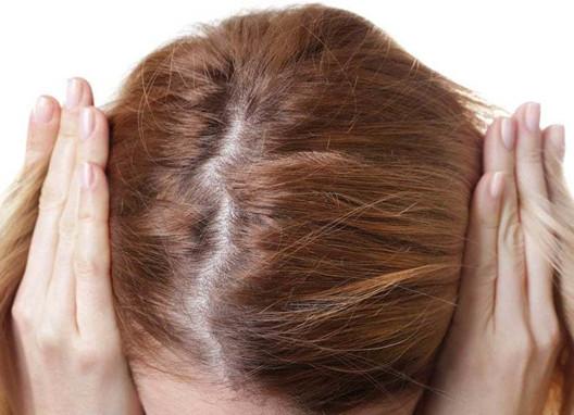 你属于哪种脱发的类型?