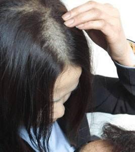 脂溢性脱发会女性有吗?该如何治疗?