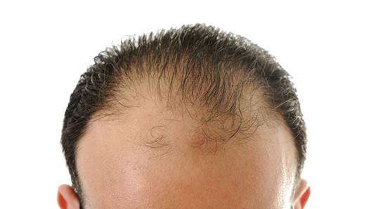 值得深思:脂溢性脱发还有必要做植发吗?