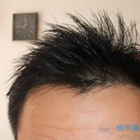 北京大麦发际线种植,成活率挺高的