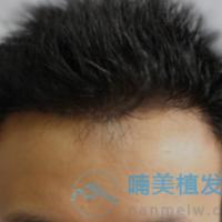 杭州大麦发际线种植,成活率非常满意