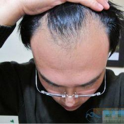 武汉大麦发际线种植,终于可以随意变换发型了