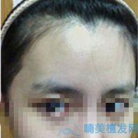长沙碧莲盛发际线种植,显得脸型好好看呀