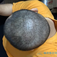 福州新生秃顶植发案例分享