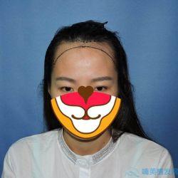 广州华美发际线种植,让脸型变得好看了