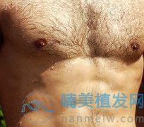 胸毛种植后