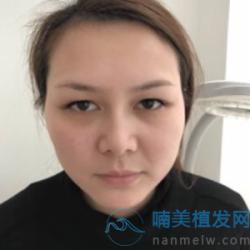 上海华美眉毛种植很自然
