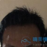 长沙艺星秃顶植发术后效果分享