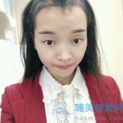 北京叶美人美人尖种植案例分享