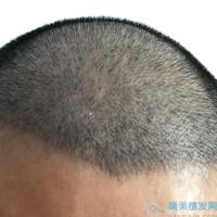 北京碧莲盛发际线种植比以前年轻了