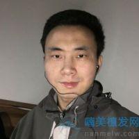 上海新生发际线种植,做的非常成功