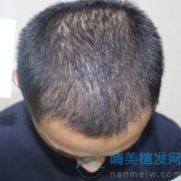 上海碧莲盛发际线种植,成活率非常高