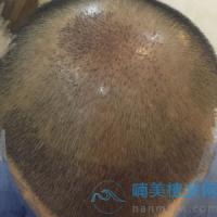 北京新生稀少加密种植,头发非常稳固
