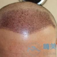 南京连天美发际线种植案例分享