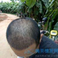 北京熙朵稀少加密种植,植发效果变化特别大