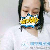 重庆碧莲盛发际线种植术后效果分享