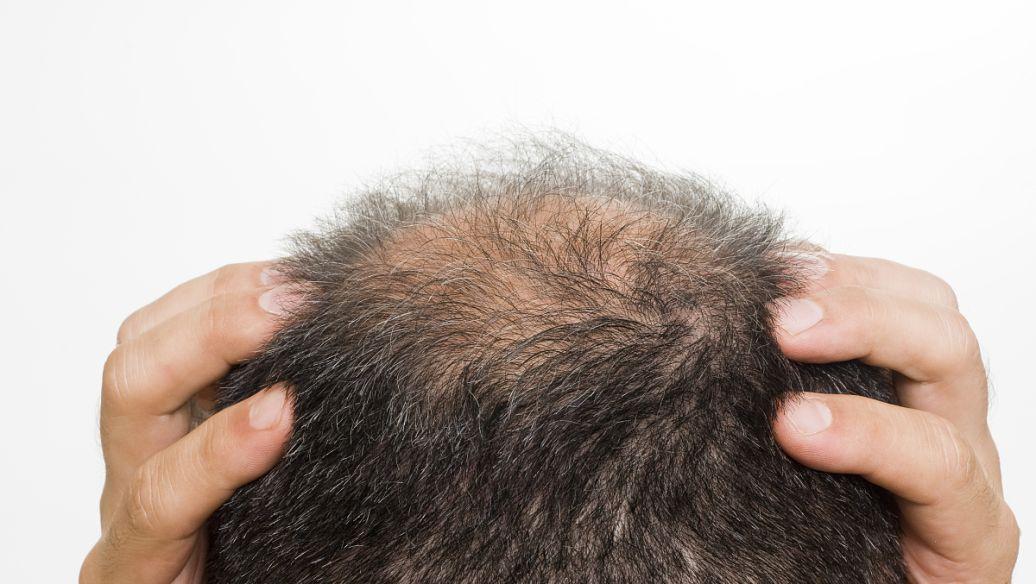 防脱发需要补充哪些营养元素?