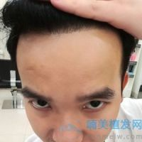 上海碧莲盛秃顶植发非常好,让我收获爱情!