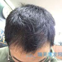 广东博士园发际线种植,发际线浓密了