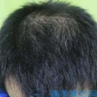 成都首瑞发际线种植,头发长得好快!