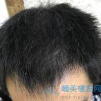 广州大麦稀少加密种植,头发密度很好