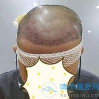 贵州美贝尔发际线种植比以前好看多了