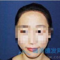 青岛熙朵发际线种植术后很头发很稳固