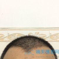 北京碧莲盛发际线种植我非常满意