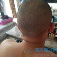 中信惠州发际线种植案例分享
