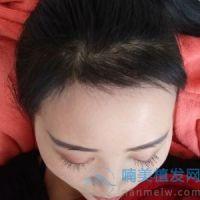 上海时光发际线种植,头发长得很好很顺