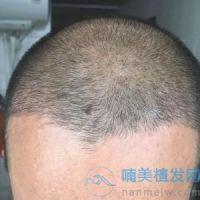 云南昆明华美头顶加密种植案例分享