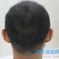 深圳富华秃顶植发,形象有了大的改变