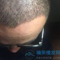 重庆华美发际线种植案例分享