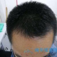 杭州美莱发际线种植,变得比以前帅气多了