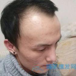 长沙新生发际线种植,头发很自然