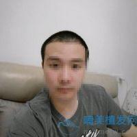 深圳新生发际线种植,人变得年轻了好多