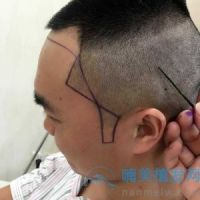 北京大麦鬓角+发际线种植,效果特别满意