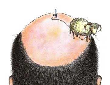 值得思考:O型脱发该怎样治疗呢?
