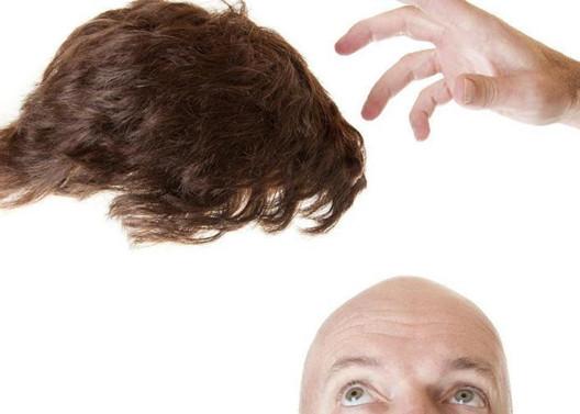 植发需要多少钱?5000根头发3万够吗?