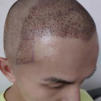 深圳青逸发际线种植术后分享