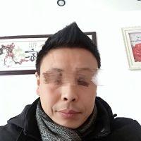上海碧莲盛发际线种植术后变化好大