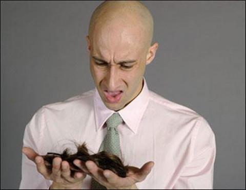 二级脱发植发需要多少毛囊单位?