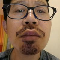 曲靖新生胡须种植术后案例分享