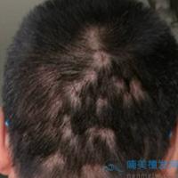 昆明新生疤痕植发案例分享