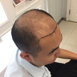 昆明丽都秃顶植发术后情况分享