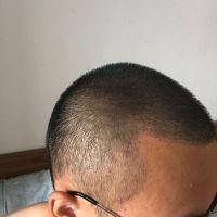 广州熙朵发际线种植术后案例