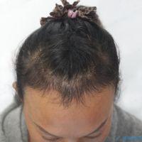 杭州新生发际线种植案例分享