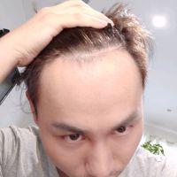 杭州碧莲盛发际线种植,非常自然