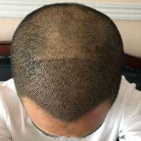 西安熙朵秃顶植发术后分享